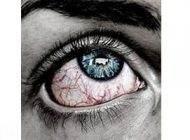 علت قرمز شدن چشم ها و راهکار درمان آن