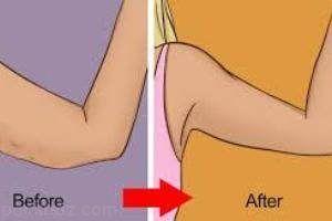 نکات رسیدگی به پوست بعد از لاغر شدن
