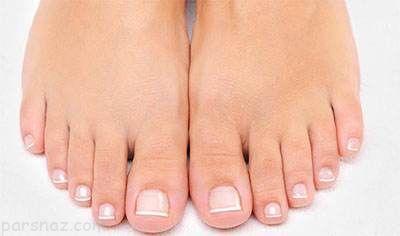وقتی انگشتان پا دچار قارچ می شود چه کنیم؟