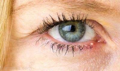 گل مژه چشم چیست و معرفی راه درمان آن