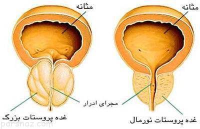 آمار مبتلایان به سرطان پروستات در ایران
