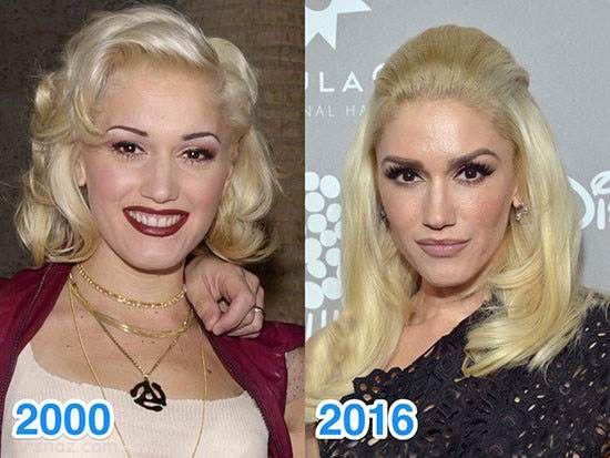 این ستاره ها قصد پیر شدن ندارند