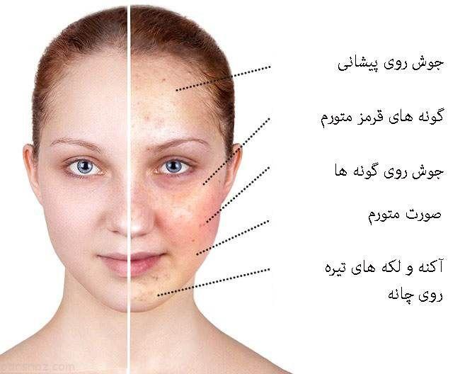 تاثیرات 3 ماده خوراکی مهم روی پوست صورت