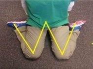 نشستن کودکان در وضعیت w بسیار مضر است
