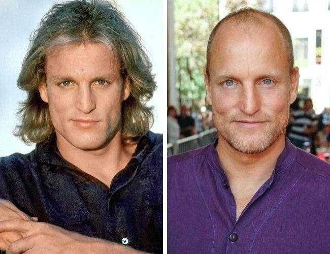 عکس های جالب 12 بازیگر کچل که قبلا مو داشتند