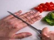 فوریت های پزشکی لازم هنگام قطع انگشت
