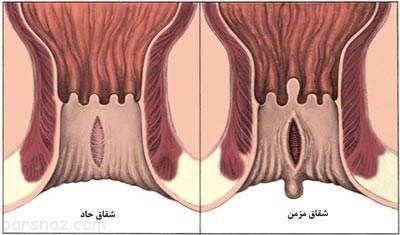 علل بروز شقاق مقعد و راه های درمان آن