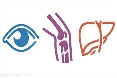 درباره بیماری کولیت اولسراتیو مربوط به روده ها