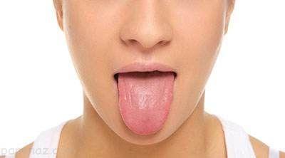 از روی رنگ زبان سلامتی را تشخیص دهید