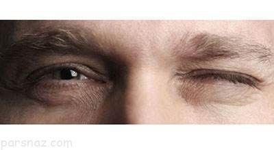 علت پریدن پلک چشم و راه درمان آن