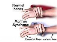 بیماری سندرم مارفان و عدم تناسب اندام