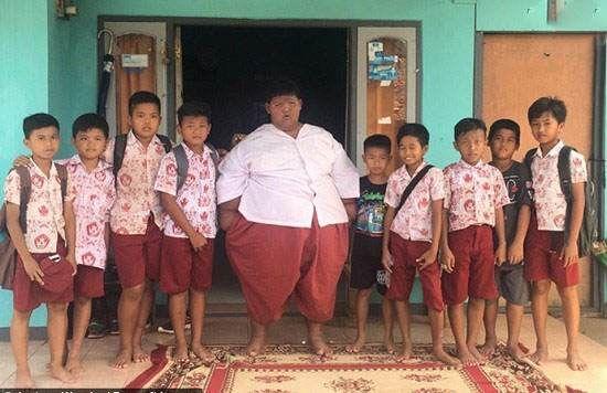 عمل جراحی برای چاق ترین کودک در تمام جهان