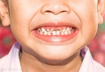 نکات و راه های جلوگیری از پوسیدگی دندان