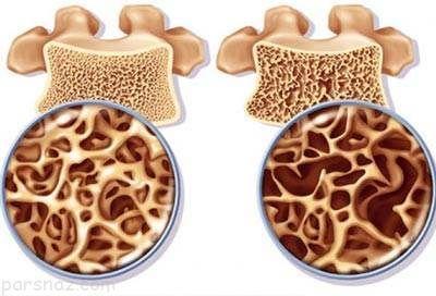 هشدارهای جدی برای خانم ها درباره پوکی استخوان