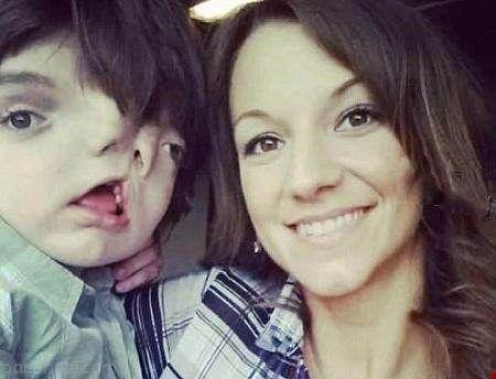 کودک دوچهره عجیب و غریب در سن 13 سالگی