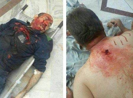 عکس های حمله تروریستی داعش در تهران