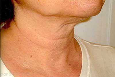 بهترین روش ها برای جلوگیری از چروک پوست گردن