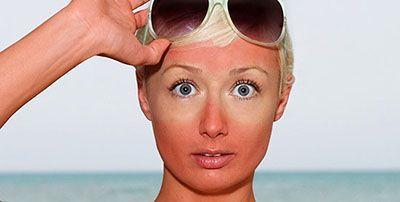 معرفی 8 روش عالی برای درمان آفتاب سوختگی