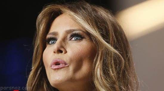 جراحی زیبایی و چهره ملانیا ترامپ در گذر سال ها
