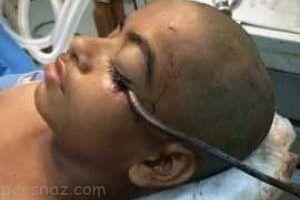 قلاب 15 سانتی داخل چشم نوجوان هندی +عکس