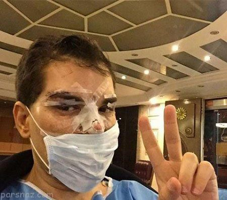 حضور مانکن عروسکی برای جراحی زیبایی در ایران