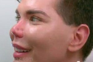 افتادن نوک بینی مرد رکورددار جراحی پلاستیک