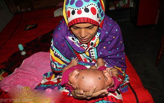 تولد دوقلوهای عجیب الخلقه بنگلادشی +عکس