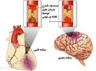 بهترین روش ها برای مقابله با سکته قلبی