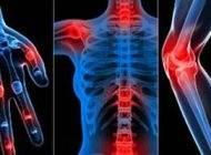 درباره بیماری آرتریت پسوریاتیک و راه درمان آن