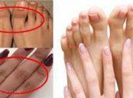 بهترین روش های از بین بردن تیرگی پوست