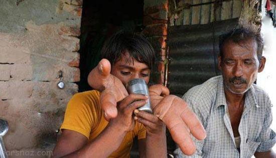 این پسر هندی بزرگ ترین انگشتان جهان را دارد