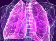 نشانه های بیماری و مشکل در ریه ها