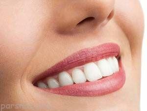 کامپوزیت دندان و دانستنی مهم آن