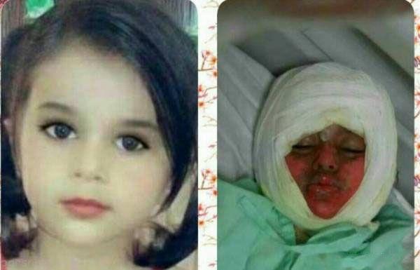 سوختگی شدید دختر سه ساله که در دیگ نذری افتاد