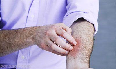 رابطه عصبی شدن و کهیر زدن پوست بدن