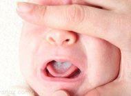 چرا دهان نوزادان دچار برفک می شود؟