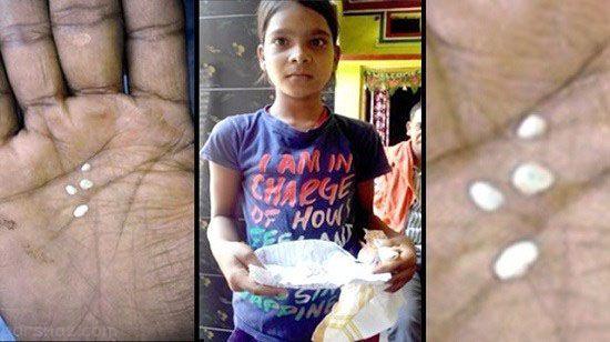 دختر هندی که اشک هایش مانند پنبه است +عکس