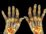 نشانه های ابتلا به بیماری آرتریت را بشناسید