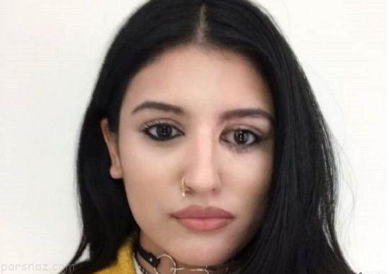 دختر مدلینگ قربانی اسید پاشی زیبایی خود را بازیافت