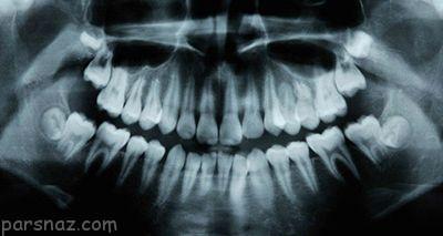 داروی ضد آلزایمر باعث ترمیم پوسیدگی دندان می شود