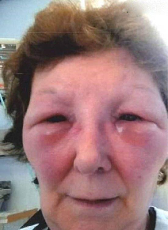 این زن با تزریق بوتاکس به هیولا تبدیل شد +عکس