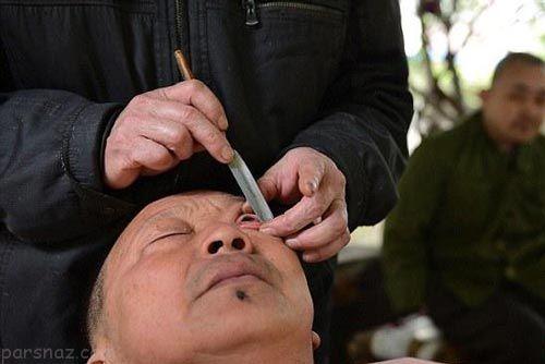 کارهای هولناک و چندش آور آرایشگران در چین +عکس