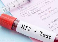5 نشانه اولیه و شایع بیماری ایدز را بدانید