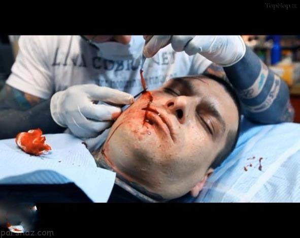 انجام عمل جراحی برای ترسناک شدن قیافه +عکس