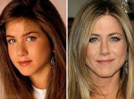 ستاره های مشهور که با عمل بینی کلا تغییر کردند