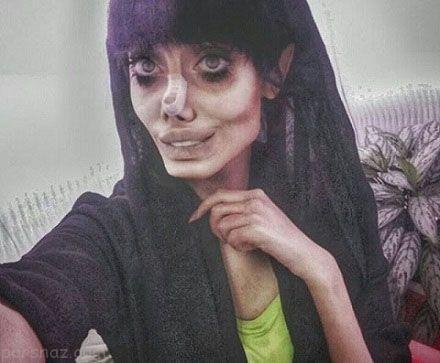 سحر دختری که خواست شبیه آنجلینا جولی شود +عکس