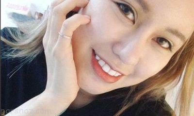 زن چینی به خاطر شوهرش 30 عمل جراحی زیبایی انجام داد