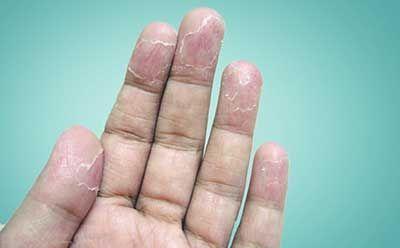 درمان پوسته ،پوسته شدن دست و کف پا