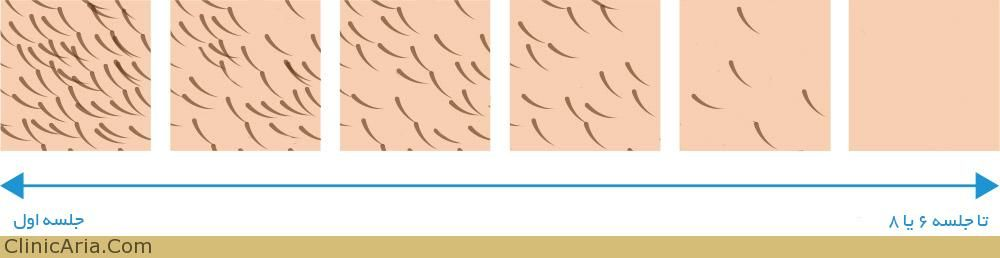 لیزر موهای زائد - لیزر چیست؟