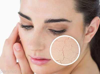 بهترین و موثرترین راه حل درمان خشکی پوست